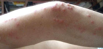 Bed bug bites